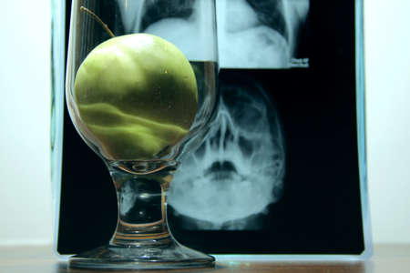 opposition: Health against disease. Fresh apple in opposition of x-ray film of human skull and lungs