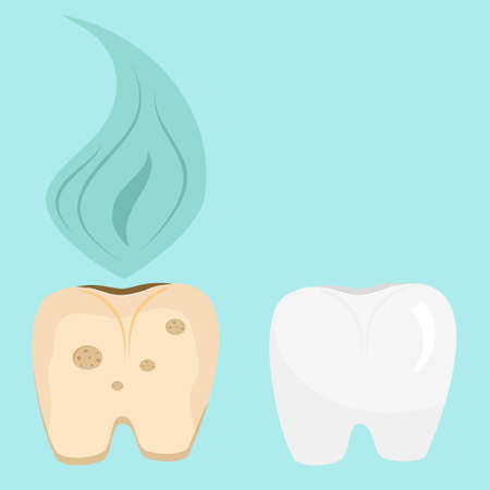 Set of rotten and healthy tooth in cartoon style isolated on blue background. The importance of daily care for the health and cleanliness of teeth. Vector illustration. 向量圖像