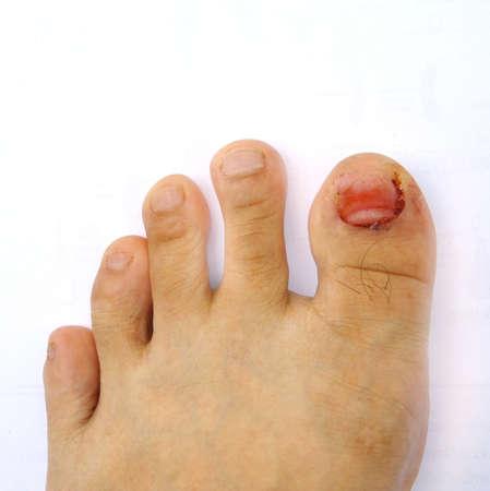 toenail fungus: close up finger toe injured to lose nail
