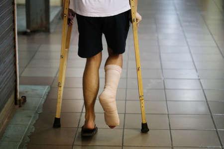splint: hombre de pie con la pierna férula