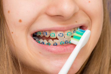 Metal braces in the child mouth Banque d'images