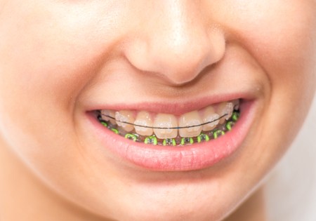 Metal braces in the child mouth Stock Photo