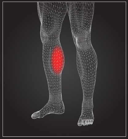 musculoskeletal: High resolution concept or conceptual 3D human anatomy body with pain isolated on black background as a metaphor to health,medicine,med ical Illustration
