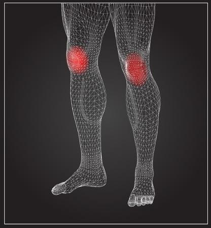 Hoge resolutie concept of conceptuele 3D menselijke anatomie lichaam met pijn geïsoleerd op een zwarte achtergrond als een metafoor voor de gezondheid, geneeskunde, med ische