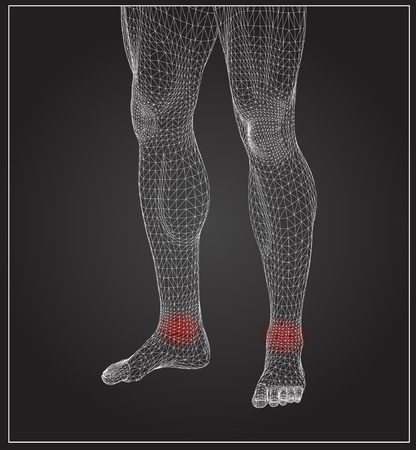 physical therapy: High resolution concept or conceptual 3D human anatomy body with pain isolated on black background as a metaphor to health,medicine,med ical Illustration