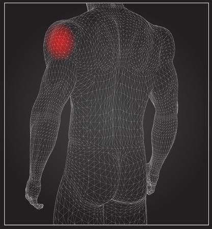 Hoge resolutie concept of conceptueel 3D menselijke anatomie lichaam met pijn geïsoleerd op zwarte achtergrond als een metafoor voor de gezondheid, geneeskunde, med ical