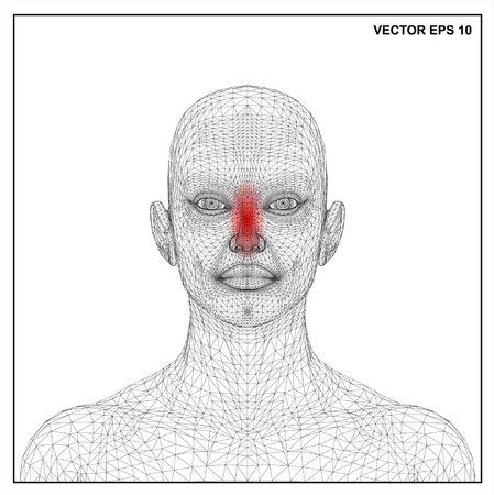young girl nude: Vector concept 3D wireframe Cartoon female, Medical illustration showing inflamed, painful.