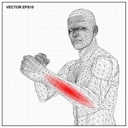 Vector concept 3D wireframe Cartoon vechter mannelijke, medische illustratie toont ontstoken, pijnlijk.