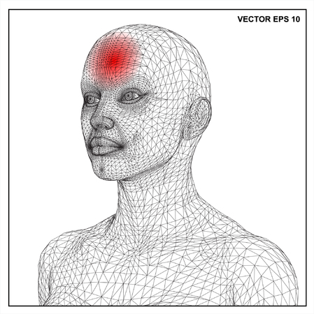 naked woman back: Vector concept 3D wireframe Cartoon female, Medical illustration showing inflamed, painful.