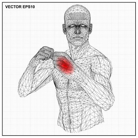 masculino: Concepto del vector alambre 3D macho combatiente de la historieta, ilustración médico que muestra inflamada, dolorosa.