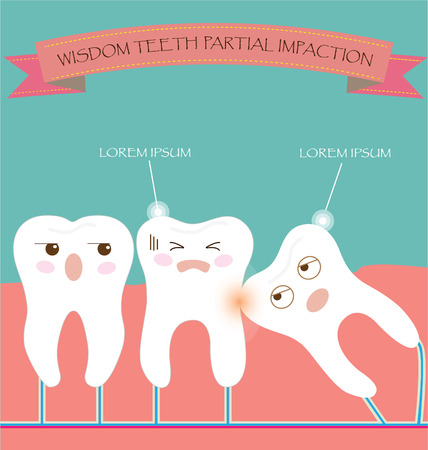 root canal: Wisdom Teeth Partial Eruption Impaction Illustration