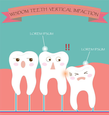 dental care: Wisdom Teeth Vertical Impaction