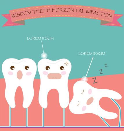 dental care: Wisdom Teeth Horizontal Impaction
