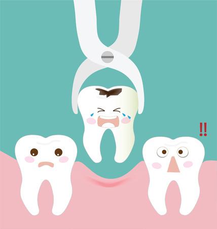 odontologa: Fórceps extracción dental y dientes Vectores