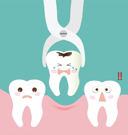odontologia: F�rceps extracci�n dental y dientes Vectores