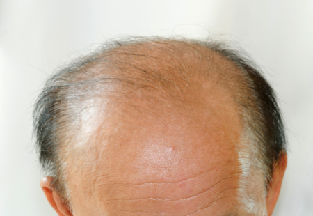 bald head: Bald head man on the white Stock Photo