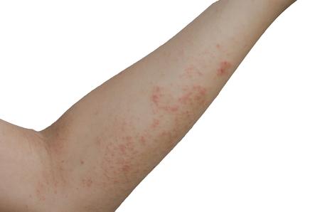 Uitslag en huid op de armen, geïsoleerd op een witte achtergrond. met uitknippad Stockfoto - 99132504