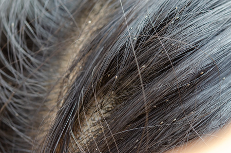 Louse egg on the hair causes itchy head. Stock Photo