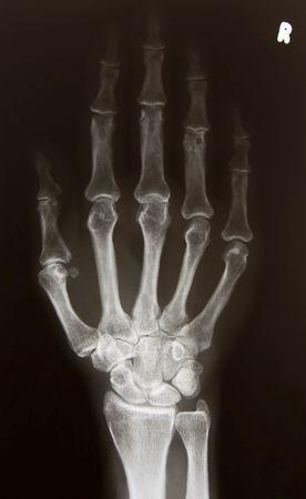 mano derecha: Imagen de rayos x de la mano derecha