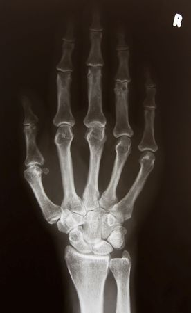 X-ray picture of right hand Stock Photo