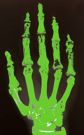 X-ray of hand coloured in green