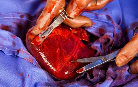 Close up of heart opeartion under sterile conditions photo