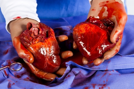 Heart transplant operation to save a patient's life Archivio Fotografico