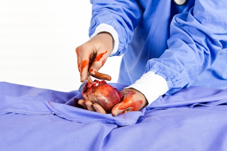 Doctor busy with heart operation to safe a patient photo