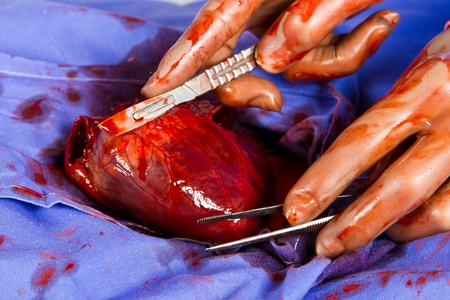 Doctor operating on patient heart in blue with tools photo