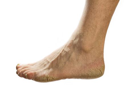 groomed: not groomed foot