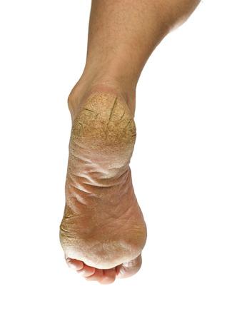 not groomed foot