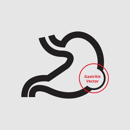 gastroenterologist: Gastritis Illustration