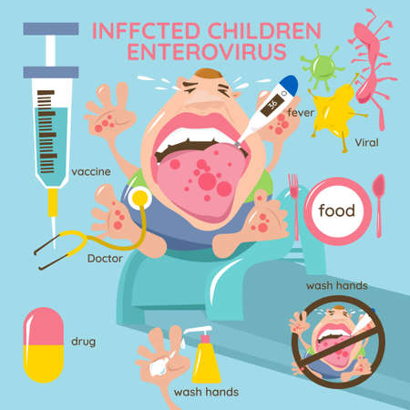 Infected children. Enterovirus. Hand-foot-mouth disease Infographics. Symptoms, prevention and treatment. Иллюстрация