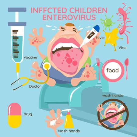 Infizierte Kinder. Enterovirus. Hand-Fuß-Mund-Krankheit Infografiken. Symptome, Vorbeugung und Behandlung.
