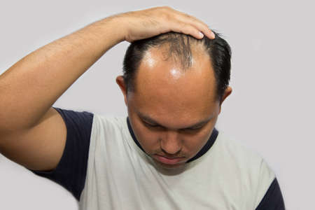 Asian bald man is showing his face and glabrous