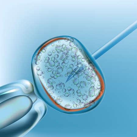 IVF. Artificial insemination. Realistic vector design 3d