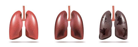 Normal lung and lung cancer illustration. Vector.