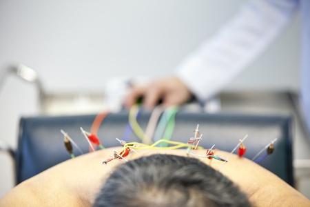 Patiënt die acupunctuur behandeling van arts Stockfoto