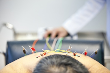 Patient receiving acupuncture treatment from doctor