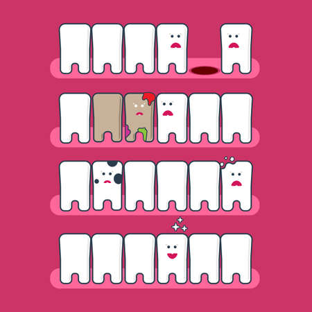 whitening: Cute cartoon flat style tooth expression set. Dental problems infographics. Teeth whitening and hygiene.  Treatment of caries, restoration of teethgreat for kids dentist design. Tooth health vector