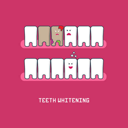 perfect teeth: Perfect teeth before and after whitening. Dental care and whitening teeth. Smile tooth vector illustration. Dental whitening infographics design for dentist hygiene design.