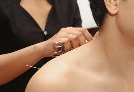 acupuntura china: hombre en una terapia de acupuntura Foto de archivo