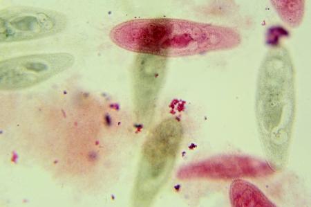 Paramecium under the microscope, background  Paramecium