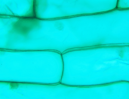 high scale magnification: Rhode flagellate protozoa under a microscope (Allium Scale Euglena W.M.), 1000x Stock Photo