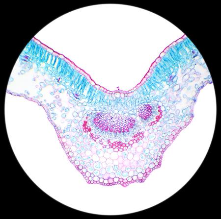 Winter Jasmine leaf under a microscope (Leaf of Winter Jasmine C.S.) (Jasminum nudiflorum), 100x