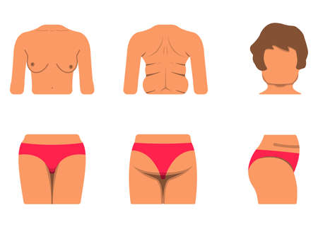 Set of White Woman Body Part. Fat and Sporty Body Icon. Vector Illustration Label. Illustration