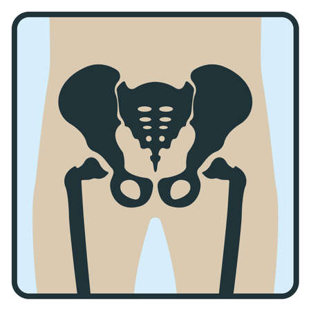 Pelvis bone, x-ray concept icon, roentgen human body image isolated on white, flat vector illustration. Skeleton part of man organism, silhouette black biological science.