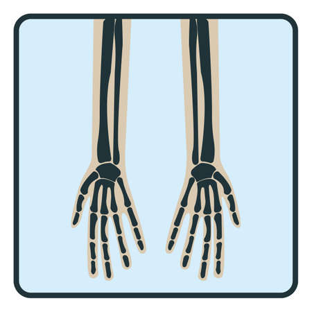 Arm hand bone, x-ray concept icon, roentgen human body image isolated on white, flat vector illustration. Skeleton part of man organism, silhouette black biological science.