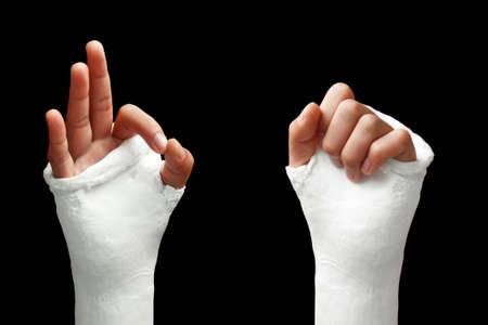 Take my broken arm photo  on dark background Stock Photo
