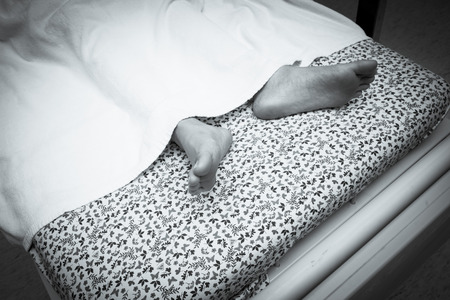 cancer foot: Feet of a dying patient lying on a mobile bed in hospital corridor Stock Photo
